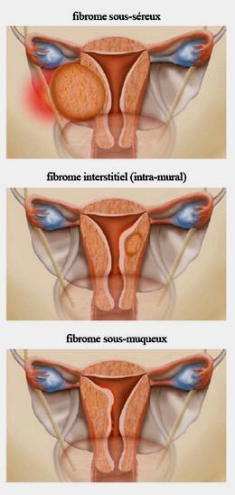 3 sortes de fibrom