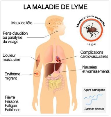 maladie de lyme armoise artemisinine