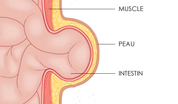 hernie-abdominale.jpg