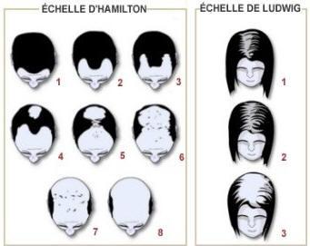 schéma chute des cheveux Hair Lthy Complex