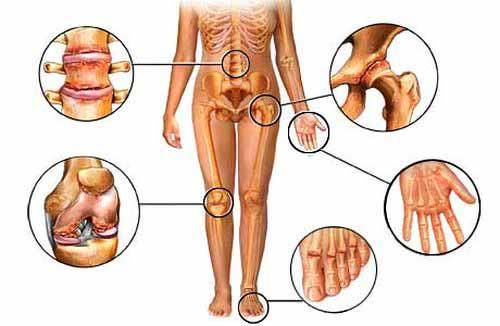 curcuma articulations